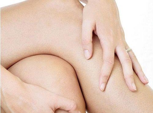 Ознаки зносу колінного суглоба