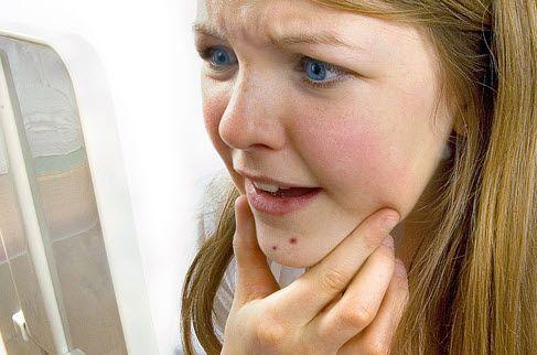 Що можуть означати прищі на обличчі