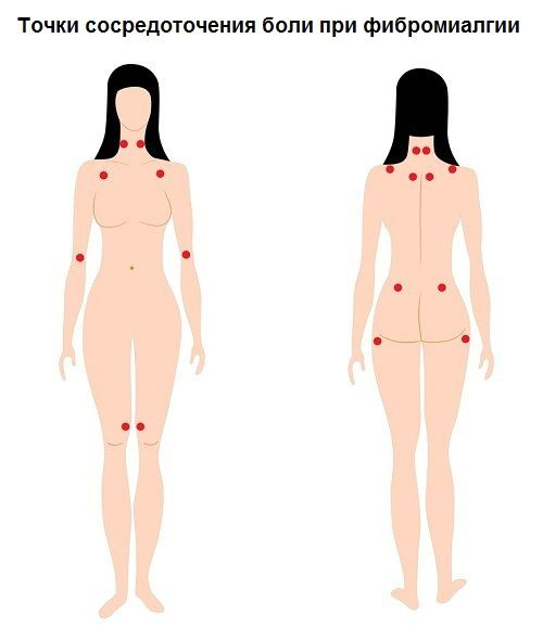 Фіброміалгія: 5 ранніх симптомів