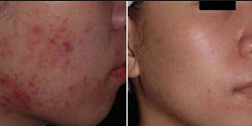Озонотерапія особи фото до і після