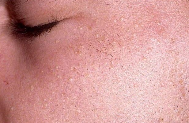 Чоловік з проблемною шкірою