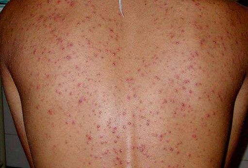 Як підтримувати здоров`я шкіри спини і плечей?