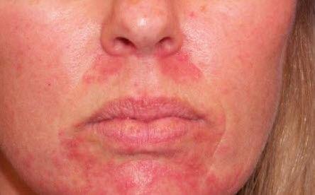 Алергія від використання ліки