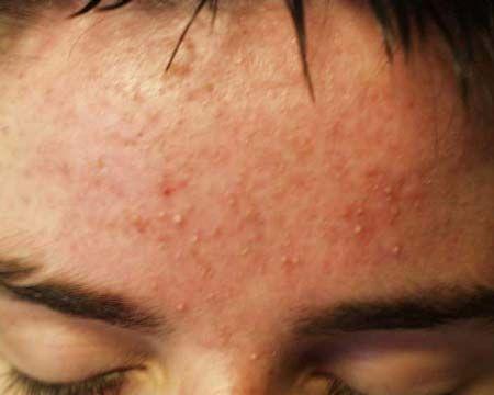 Шкірні висипання на лобі