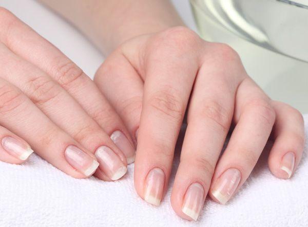 Лікування білих плям на нігтях