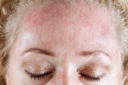 шкірний дерматит фото