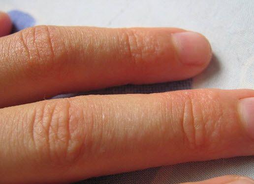 Методи швидкого позбавлення від прищів на пальцях рук