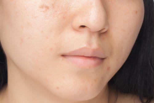 Плями на обличчі: 5 кращих відбілюючих масок, які допоможуть вирішити цю проблему