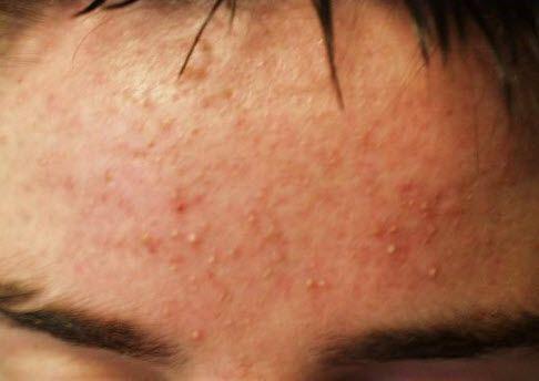 Чому алергія і її наслідки для людини небезпечні?