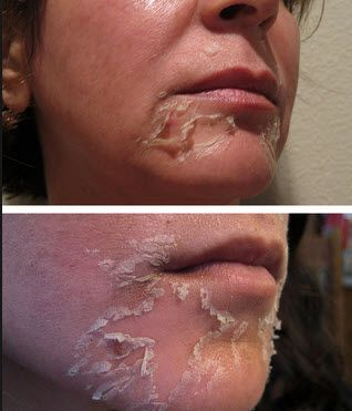 Чому відбувається лущення шкіри