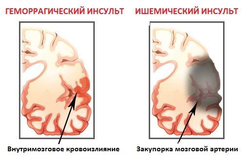 Ознаки інсульту: це знання може врятувати життя