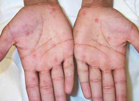 Сифілітична висипка - лікування у жінок і чоловіків