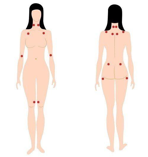 Симптоми фибромиалгии