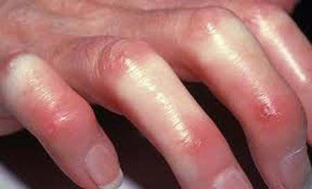 Симптоми і лікування склеродермії