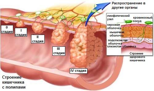 Поліпи в кишечнику