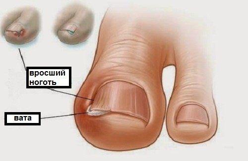 Травми і захворювання пальців ніг: навчитеся ефективно справлятися з ними!