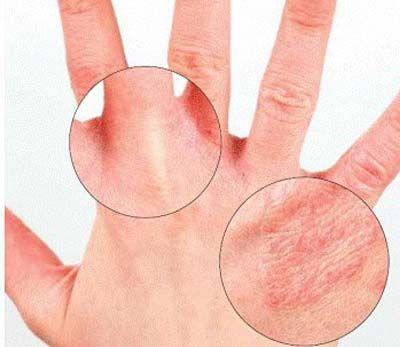 Вірусні, інфекційні та інші захворювання шкіри