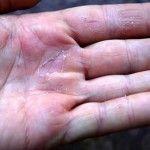 Ви зайшли в рубрику: догляд за руками